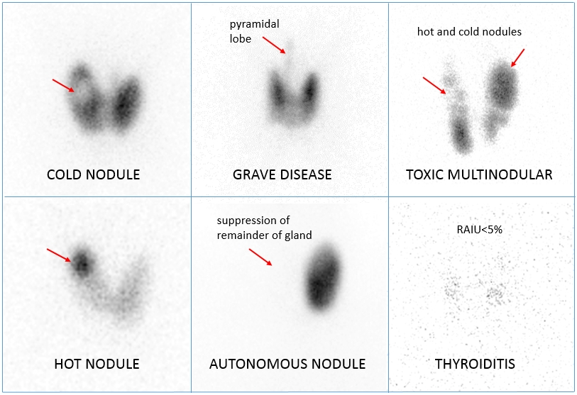 thyroid i123 update scan